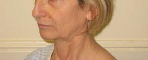 ניתוח צוואר - תמונה לפני