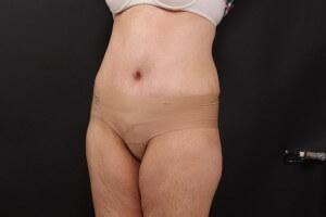 אחרי ניתוח בטן