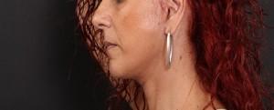 דוגמא של צלקת אחרי ניתוח מתיחת פנים