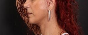 דוגמא של צלקת אחרי ניתוח פנים