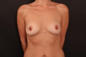 תמונות לפני ואחרי - ניתוח הגדלת חזה 1