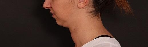 לפני תהליך מתיחת צוואר