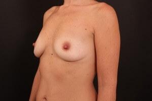 תמונות לפני ואחרי - ניתוח הגדלת חזה 2