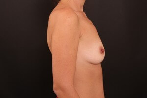 תמונות לפני ואחרי - ניתוח הגדלת חזה 3