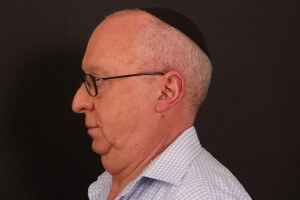 ניתוח פנים לגברים - לפני