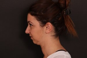 לפני ניתוח צוואר