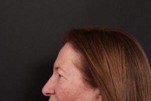 לפני ניתוח עפעפיים פרופיל שמאל