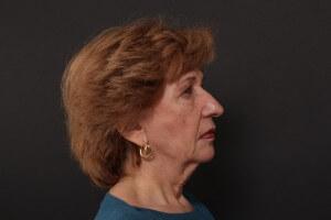לפני ניתוח מתיחת פנים - פרופיל ימין
