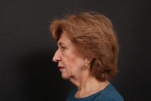 לפני ניתוח פנים - פרופיל ימין