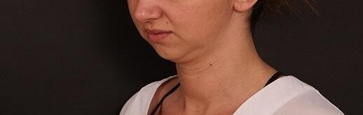 תמונה לפני ניתוח צוואר ופנים