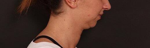 לפני ניתוח צוואר ופנים