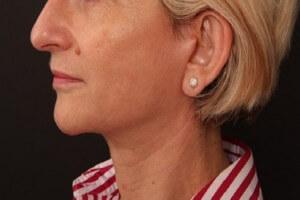 מיקום הצלקת בניתוחי צוואר
