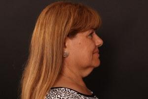 לפני ניתוח מתיחת צוואר - סימה פרופיל ימין