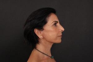 אחרי ניתוח פנים - פרופיל ימין