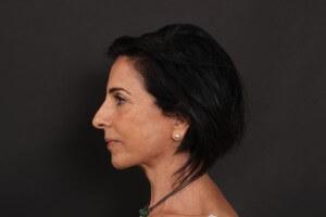 אחרי ניתוח פנים - פרופיל שמאל