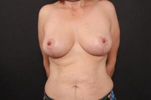 אחרי ניתוח הרמת חזה ללא שתל