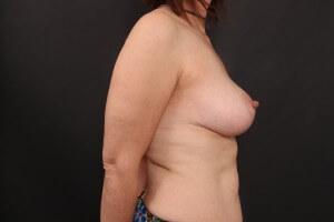 אחרי ניתוח הרמת חזה ללא שתל - פרופיל ימין