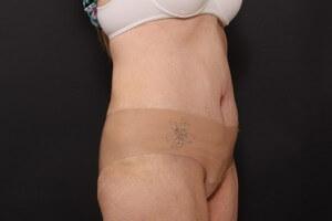 אחרי ניתוח מתיחת בטן
