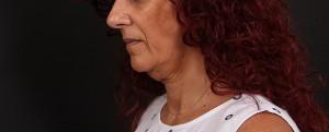 ניתוח צוואר - לפני