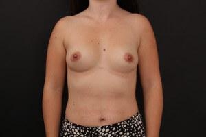 לפני ניתוח הגדלת חזה