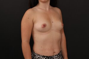 לפני ניתוח הגדלת חזה - צד ימין