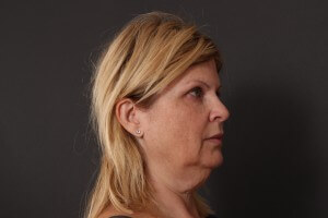 מתיחת פנים לפני ואחרי - דורית - פרופיל ימין