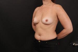 ניתוח הגדלת חזה לפני