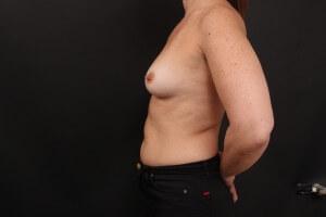לפני ניתוח הגדלת חזה - פרופיל שמאל