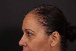 לפני ואחרי ניתוח עפעפיים - אורנה 4