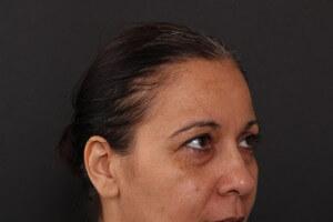 לפני ואחרי ניתוח עפעפיים - אורנה 5