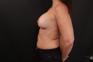 אחרי ניתוח הגדלת חזה - פרופיל שמאל