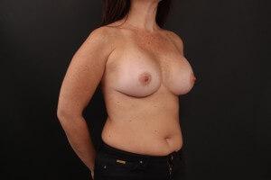 ניתוח הגדלת חזה אחרי