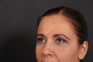 לפני ואחרי ניתוח עפעפיים - אורנה 3