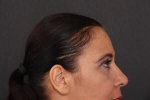 לפני - אחרי ניתוח עפעפיים - אורנה 6