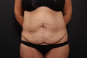 ניתוח מתיחת בטן לפני