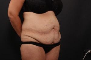 לפני ניתוח בטן