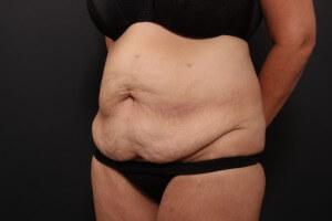 לפני ניתוח מתיחת בטן
