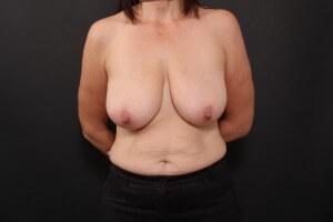 לפני ניתוח הרמת חזה ללא שתך
