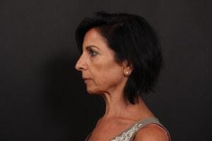 לפני ניתוח פנים - פרופיל שמאל