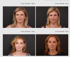 ניתוח פלסטי - תמונות לפני ואחרי