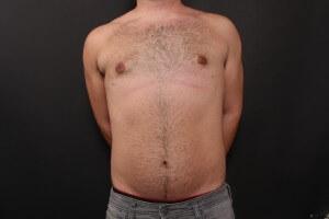 אחרי ניתוח גניקומסטיה - הקטנת חזה לגבר