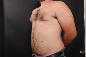לפני ניתוח גניקומסטיה