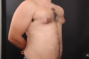 ניתוח הקטנת חזה לגבר לפני