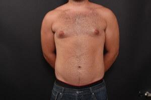 לפני ניתוח גניקומסטיה - הקטנת חזה לגבר