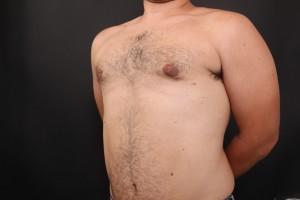 אחרי ניתוח גניקומסטיה