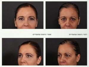 ניתוחי עפעפיים - באיזה גיל