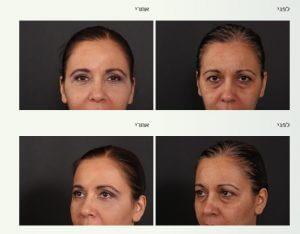 טיפולים אסתטיים באזור העיניים