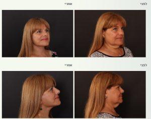 ניתוח צוואר אחרי ירידה במשקל
