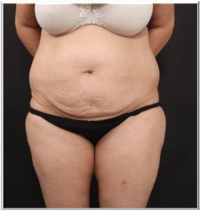 לפני ניתוח שאיבת שומן