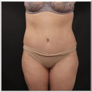 אחרי ניתוח שאיבת שומן